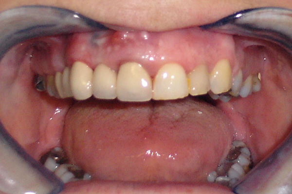 Dental Bridges After Photo
