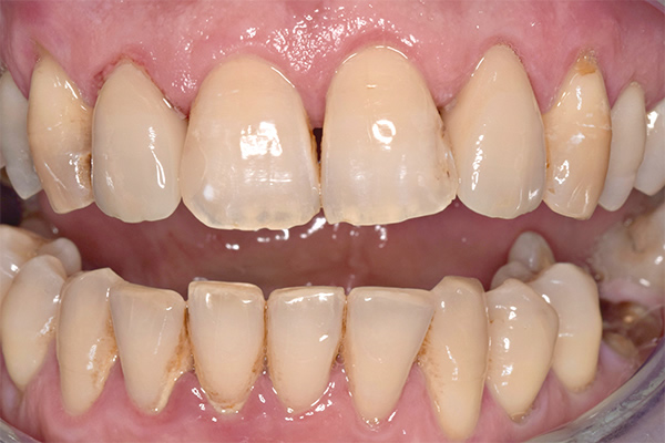 Dental Crowns After