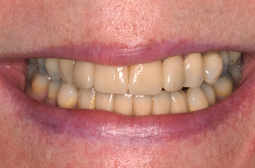 After Dental Implants in Leicester
