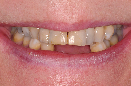 Before Dental Implants in Leicester