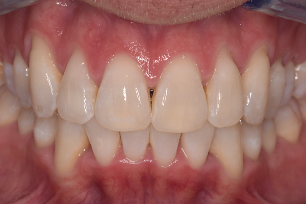 After Invisalign Treatment in Leicester