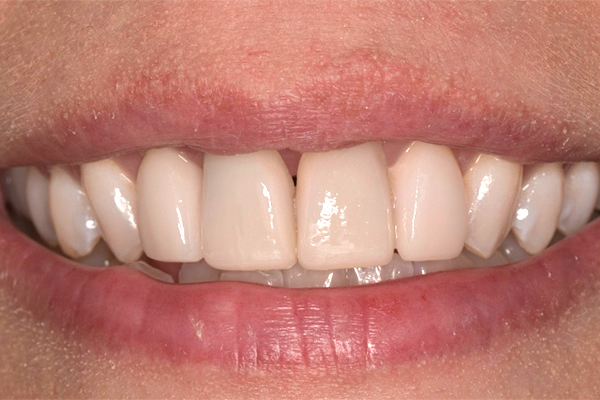 After Dental Veneers in Leicester