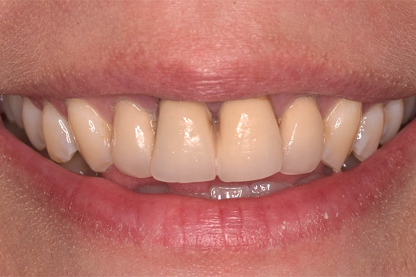 Before Dental Veneers in Leicester