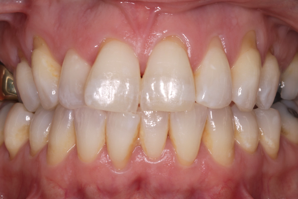 Teeth Whitening Leicester | Tooth Whitening Experts